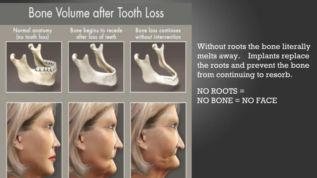 image shows a comparison of how tooth loss affects bone loss which affects how faces start to appear sunken