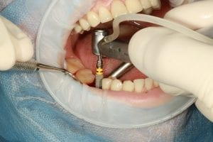 dental_implant_Forest_Dental