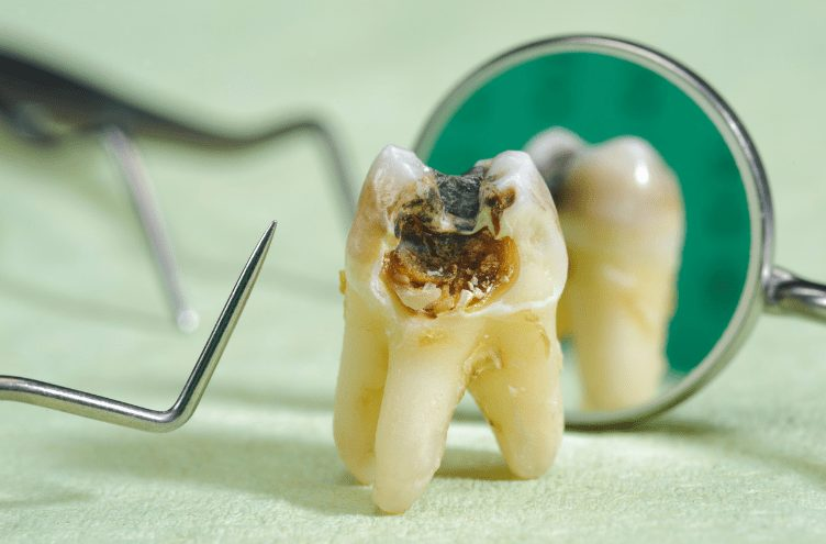 Tooth decay shown with dental tools around.