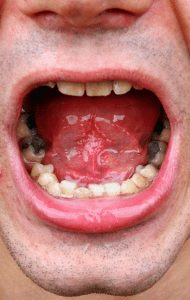 old_fillings_Lynchburg_dentist